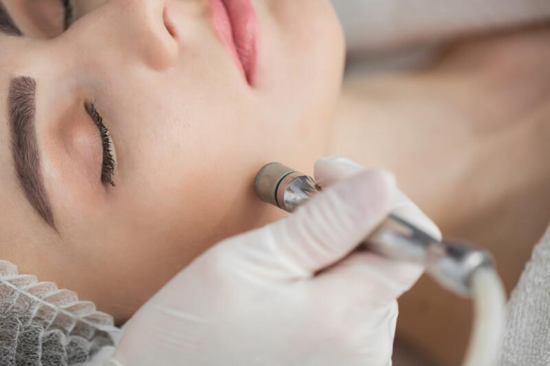 Beauty Point | Microdermabrasion
